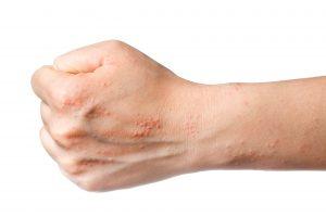 TSB Eczema Image 3
