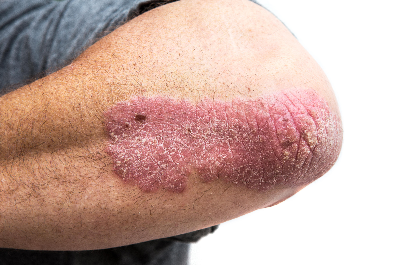 TSB Psoriasis Image 1