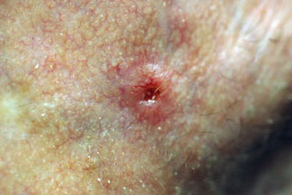 TSB Basal Cell Carcinoma Image 2