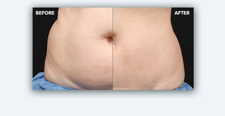 TSB CoolSculpting Image 1