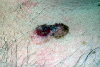 TSB Melanoma Image 1