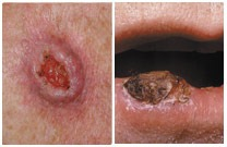 TSB Squamous Cell Carcinoma Image 2